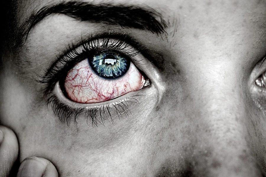 ¿Sabes Lo Que Es Ojo Rojo Y La Blefaritis?